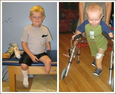 Congenital Limb Defects
