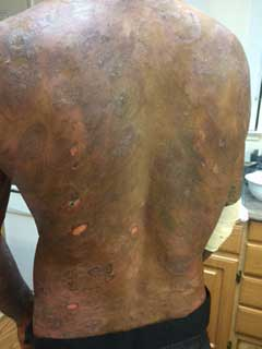 Lee's back with skin lesions