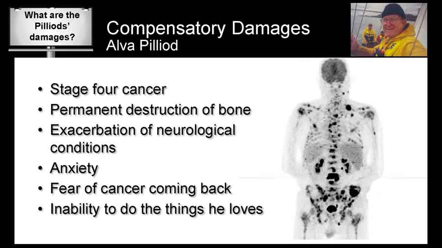 Scan showing all the lesions and tumors in Alva Pilliod's body